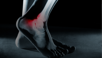 What is human Kinetics and how can it help with my rehab?