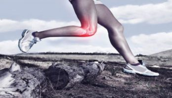 Did your knee function well after ACL reconstruction?